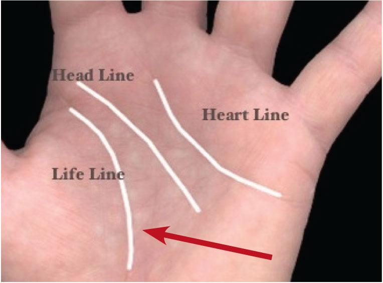 11-lifeline